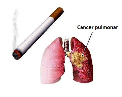 cancer la plamani noduli)